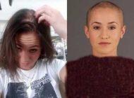 زنی که بعد از تجاوز جنسی موهایش کاملا ریخت