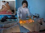 سوزاندن نوجوان چینی برای کاهش وزن
