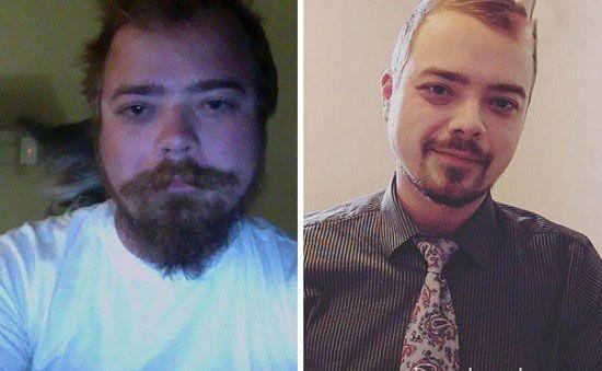 عکس های افراد قبل و بعد از ترک مشروب