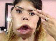 شغل عجیب دختری که تومور روی صورتش دارد