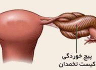 درباره پیچ خوردگی تخمدان در زنان و راه درمان