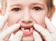 چرا دندان های شیری پوسیده می شوند؟