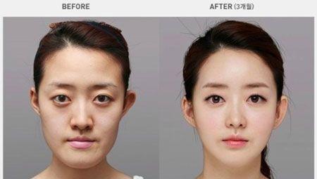 عجیب ترین عمل های جراحی زیبایی در جهان