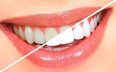 دندان های خود را با روغن نارگیل سفید کنید