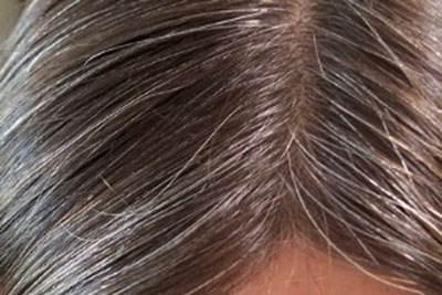 تاثیر استرس بر سفید شدن زودهنگام موها