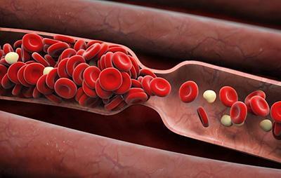 نشانه های وجود لخته خون در بدن افراد