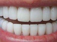 جرم گیر عالی دندان را در خانه بسازید