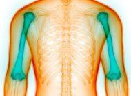 نشانه های پنهان بیماری پوکی استخوان را بشناسید