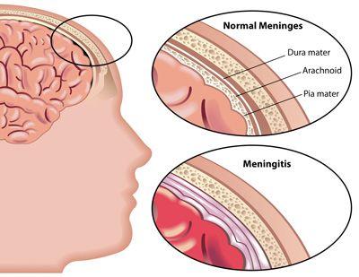 علائم بیماری مننژیت مغزی را بدانید