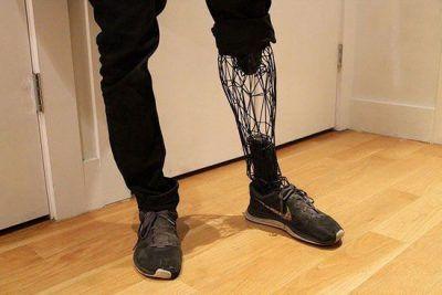 پای مصنوعی ساخته شده از تیتانیوم سبک