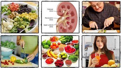 توصیه های تغذیه ای برای بیماری سنگ کلیه