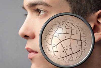 خشکی پوست را با طب سنتی درمان کنید