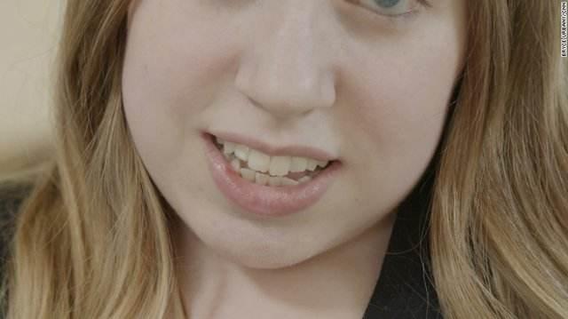 عجیب ترین بیماری دنیا در بدن این دختر زیبا