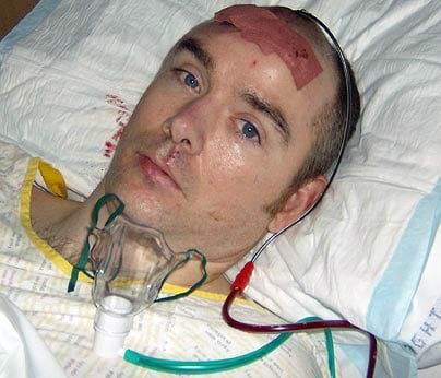 افراد خوش شانسی که سرشان تیر خورد اما زنده ماندند