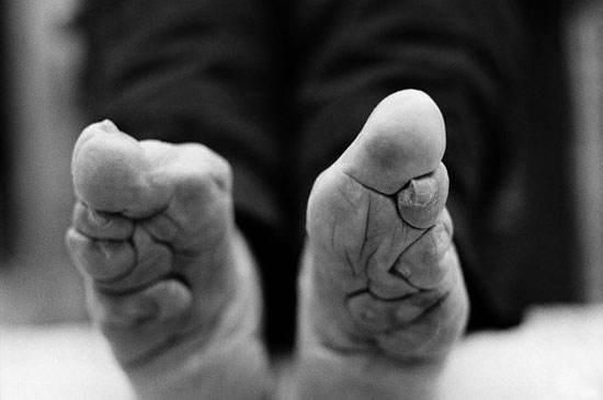آداب و رسوم های دنیا که اندام های بدن را تغییر می دهند