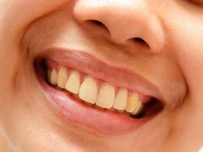 دلیل عدم سفید شدن دندان ها با وجود مسواک زدن