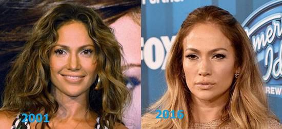 تصاویر گذشته و حال بازیگران که قصد پیر شدن ندارند