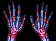 توصیه های موثر برای داشتن استخوان های سالم