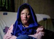 درخواست سهیلا جورکش قربانی اسید پاشی
