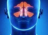 بهترین راهکارهای درمانی برای سینوزیت مزمن