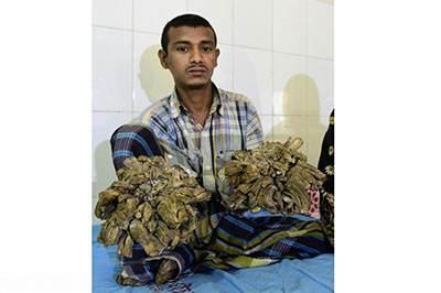 مرد درختی با تلاش پزشکان بالاخره درمان شد