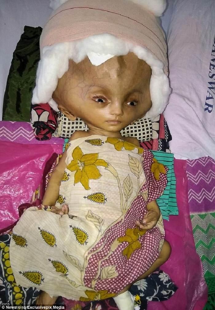 بیماری عجیب و نادر کودک هندی را ببینید