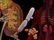 همه چیز درباره بیماری عفونت ادراری در انسان