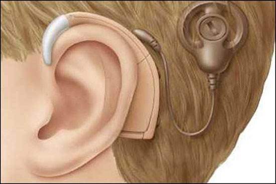 درباره حلزون شنوایی و بهبود عملکرد شنیدن