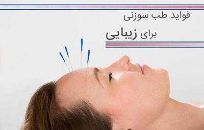 کاربرد طب سوزنی در زیبایی و طراوت پوست