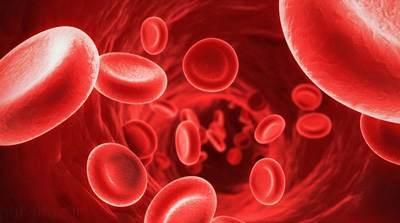 علائم کم خونی ناشی از فقر آهن در بدن
