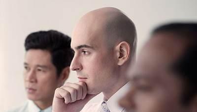حقایقی درباره کچلی و طاسی موی سر مردان