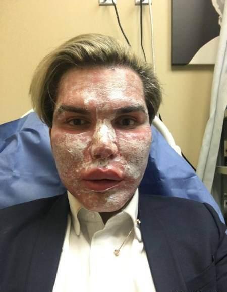 مردی که 51 عمل جراحی انجام داد تا مانکن شود