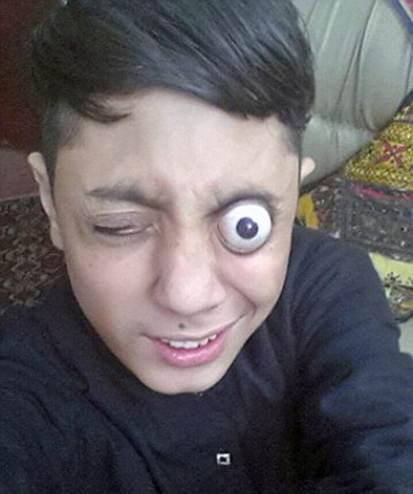 پسربچه پاکستانی که چشم های از حدقه بیرون می زند