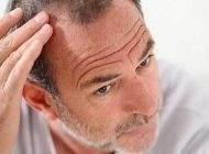 بررسی رابطه استرس و سفید شدن موها