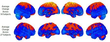 فضا روی مغز انسان ها تاثیر می گذارد