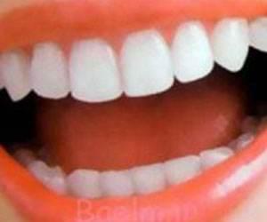 معرفی میوه های مفید برای دهان و دندان