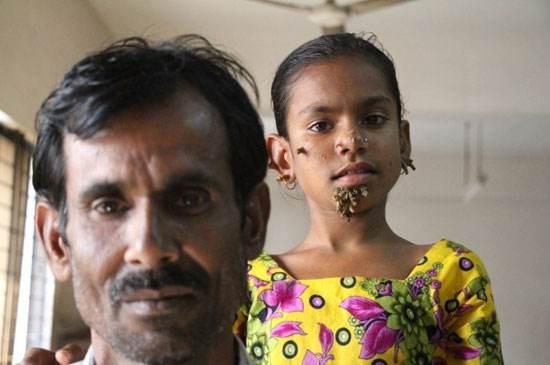 ساهانا خاتون اولین دختر درختی دنیا