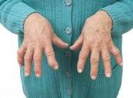 مواردی که باید درباره آرتریت روماتوئید بدانید