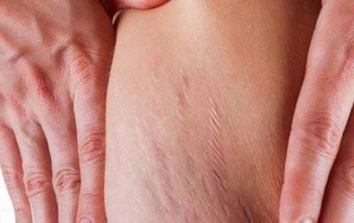 ترک های پوستی بدن در دوران حاملگی زنان