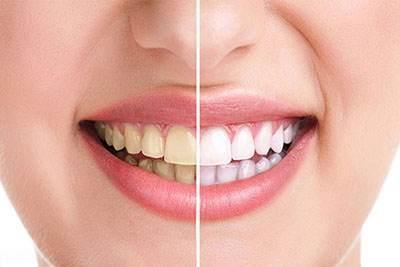 معرفی 4 ترفند مفید برای سفید کردن دندان ها