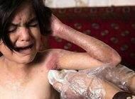 درباره بیماری پروانه ای EB و اقدامات درمانی آن