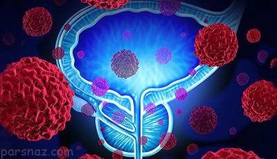 4 نشانه خطرناک درباره بیماری سرطان پروستات