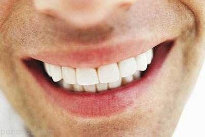 داشتن دندان های سالم با انجام این کارها