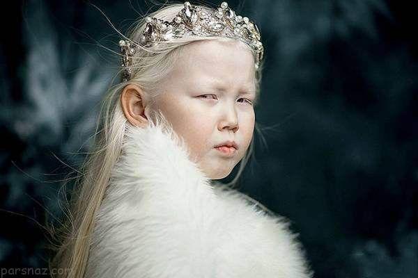 دختر سفید برفی مدلینگ جذاب و دوست داشتنی