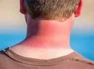 عارضه های پوستی شایع در فصل بهار و تابستان
