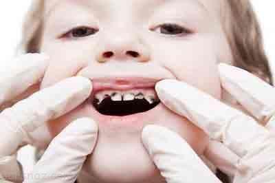 روش های جلوگیری از سیاه شدن دندان کودکان