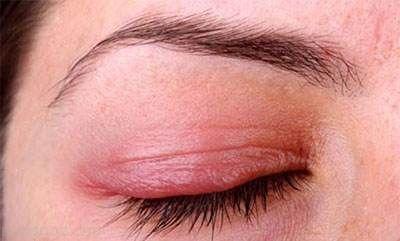 شایع ترین بیماری های پلک چشم را بشناسید