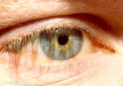 دلایل قی کردن چشم ها و راه های درمان آن
