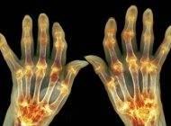 نشانه های اولیه بیماری آرتروز در خانم ها