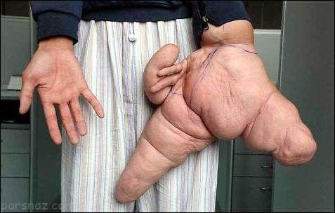 عجیب ترین اندام های بدن که در گینس رکورد زده اند